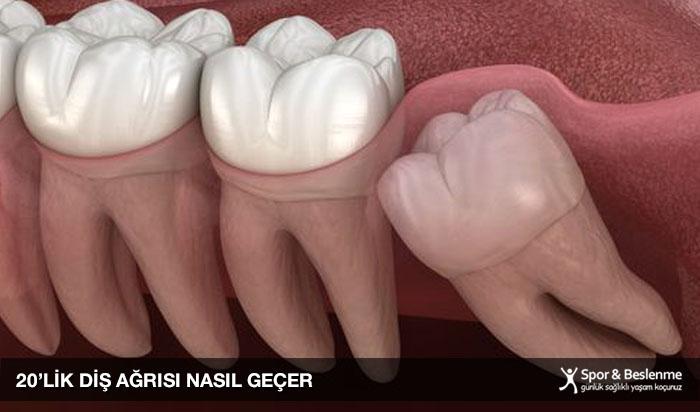 20 lik diş ağrısı nasıl geçer evde