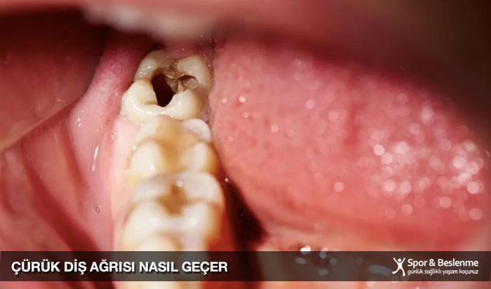 çürük diş ağrısı nasıl geçer