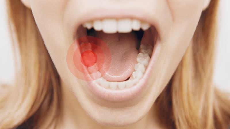 Diş Ağrısının Nedenleri Nelerdir