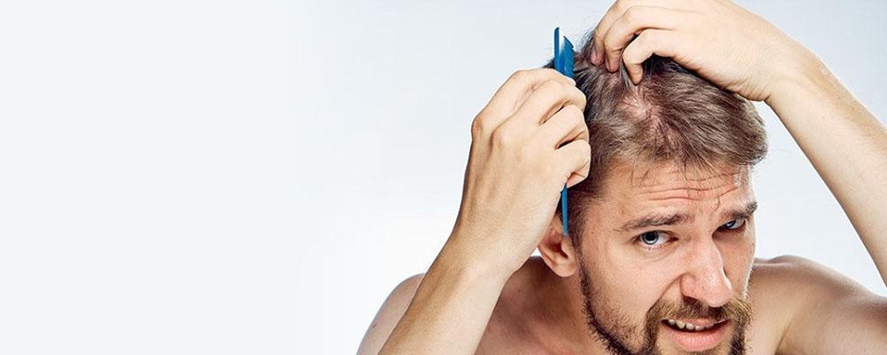 Saç Dökülmesi İçin Hangi Doktora Gidilmeli