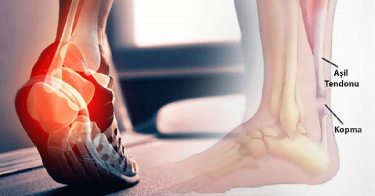 Tendon Yaralanmalarının Sebebi Nedir