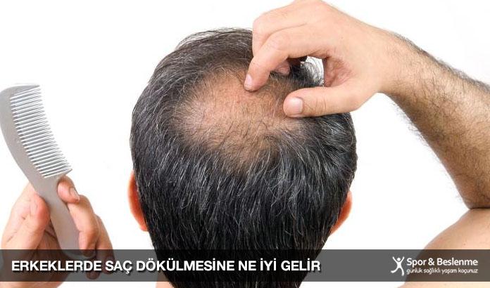 erkeklerde saç dökülmesine ne iyi gelir