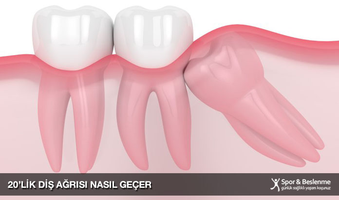 20lik diş ağrısı nasıl geçer