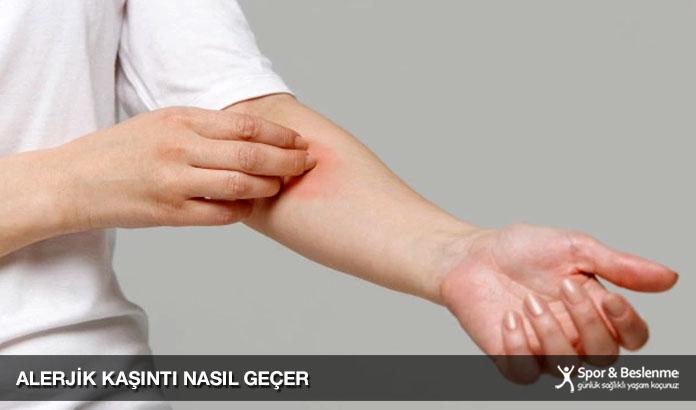 alerjik kaşıntı nasıl geçer
