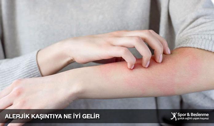 alerjik kaşıntıya ne iyi gelir