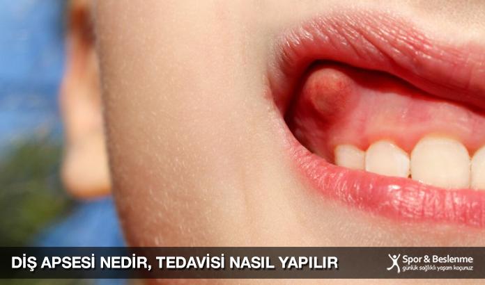 Diş Apsesi Nedir, Tedavisi Nasıl Yapılır