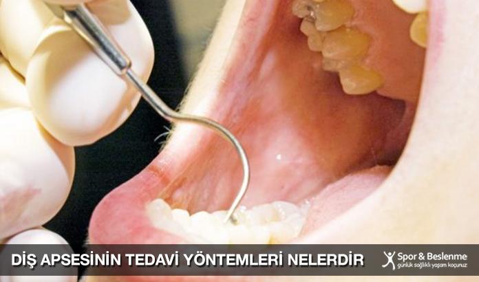 Diş Apsesinin Tedavi Yöntemleri Nelerdir