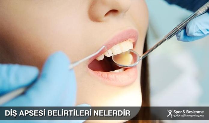 Diş Apsesi Belirtileri Nelerdir