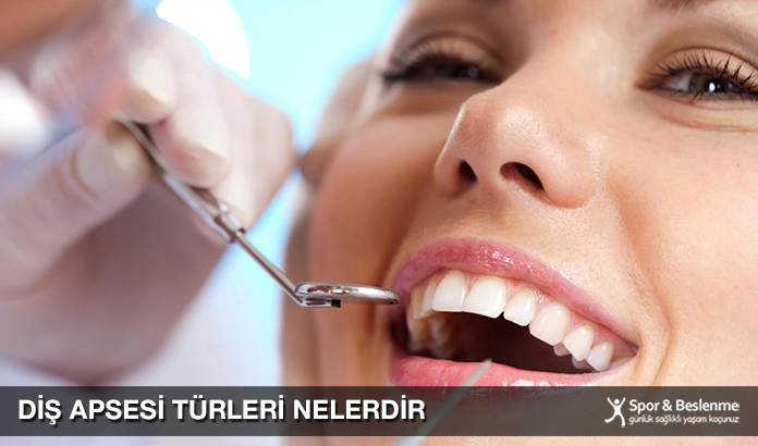 Diş Apsesi Türleri Nelerdir